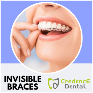 Invisible Braces | Credence Dental