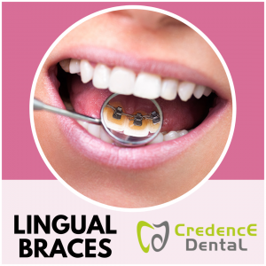 Lingual Braces | Credence Dental