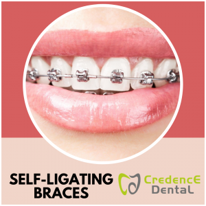 Self-Ligating Braces | Credence Dental