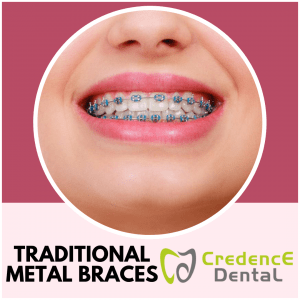 Traditional Metal Braces | Credence Dental