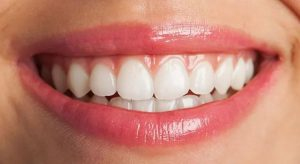Dental Clinic in Bangalore
