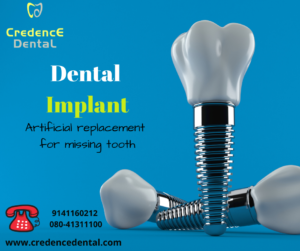 Dental implant | orthodontics