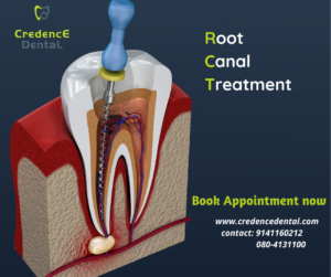 Root canal treatment | RCT