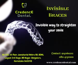 Invisible braces | orthodontics