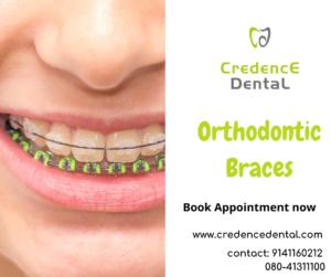 Orthodontic Braces | crooked teeth