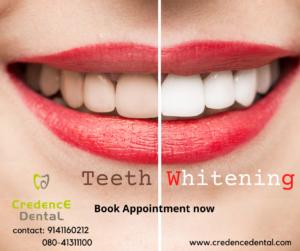 Teeth whitening | Teeth bleaching