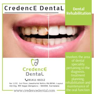 Dental rehabilitation | oral