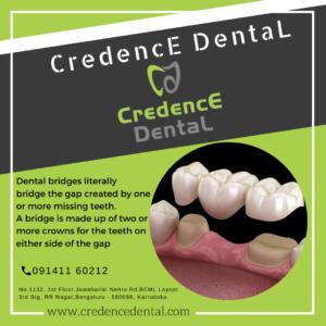 Dental bridges | Crown