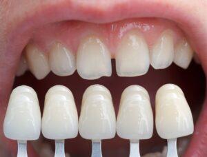 Dental veneers | porcelain