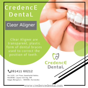 Clear aligner | Invisible braces