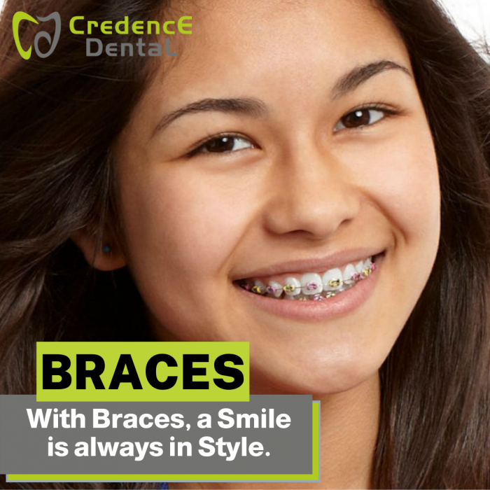 Craces | Credence Dental