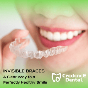 INVISIBLE BRACES - A Clear Way to a Perfectly Healthy Smile